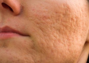 acne scars helped with dermaroller